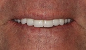 Partial Dentures, Fixed Dentures, Ceramic Crowns