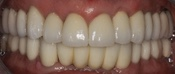 Ceramic Crowns, Implant Crowns, Implant Dentures