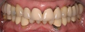Full mouth rehabilitation, partial dentures, implant bridges