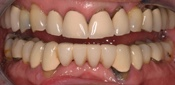 Fixed Dentures, Implant Bridges, Ceramic Crowns