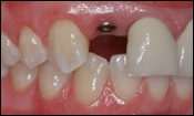 Missing Teeth Replacement | Cost To Replace Missing Teeth