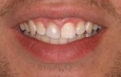 Dental Bonding Denver, Co