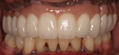 Full Arch Implant Restoration