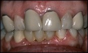 Conventional Crowns, Crowns, Single Crown