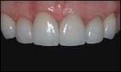 Ceramo-metal Tooth Crowns cosmetic dentistry