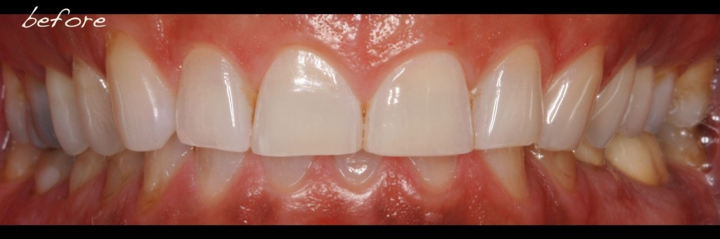 Full Mouth Dental Implants - Teeth-Borne Reconstruction