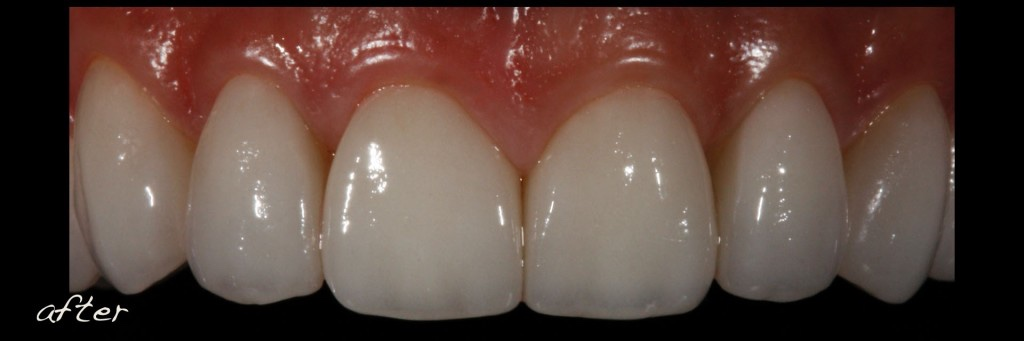 Full Mouth Dental Implants - Teeth-Borne Dental Implants-Reconstruction-Conservative-Alex-Sasia.021