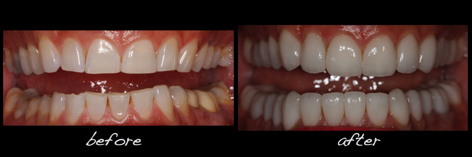 Full Mouth Dental Implants Reconstruction Conservative Alex Sasia.023