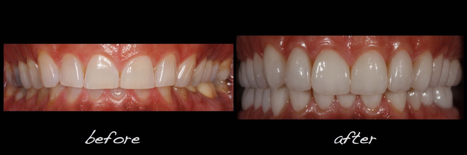 Full Mouth Dental Implants Reconstruction Conservative Alex Sasia.024