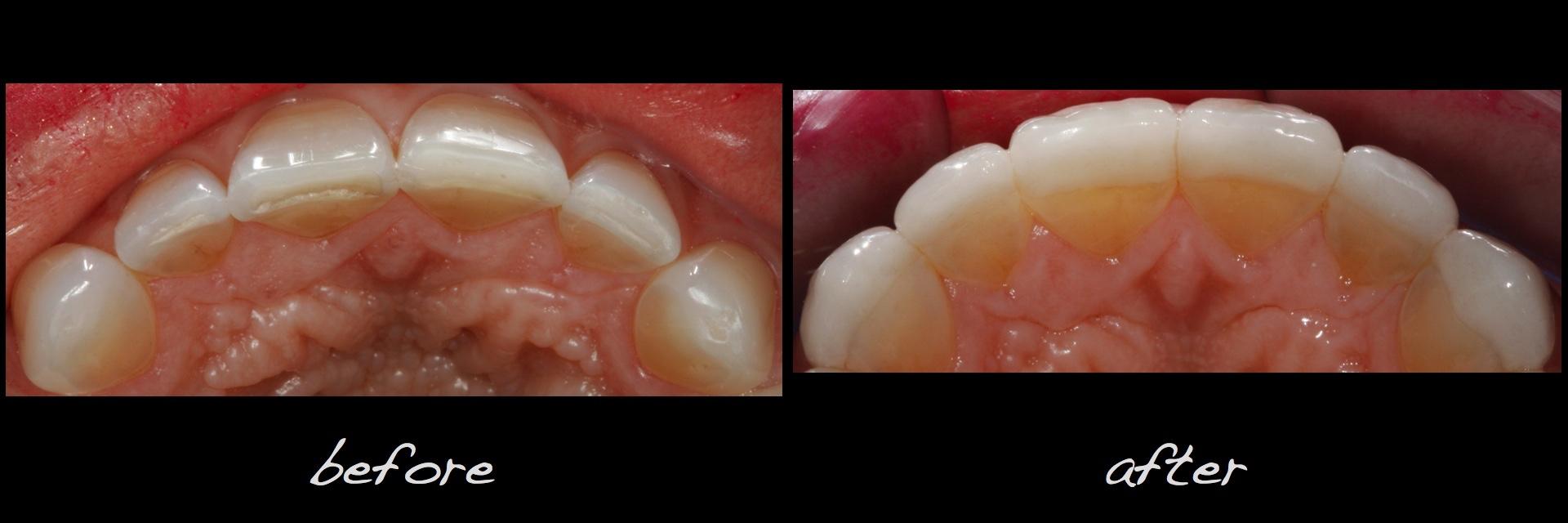 Full Mouth Dental Implants Denver