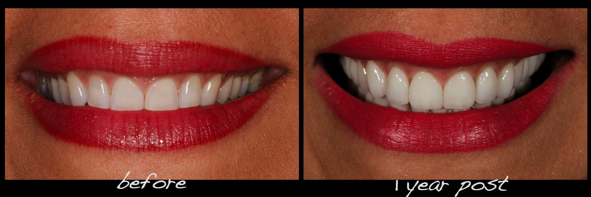 Full Mouth Dental Implants Reconstruction Conservative Alex Sasia.029