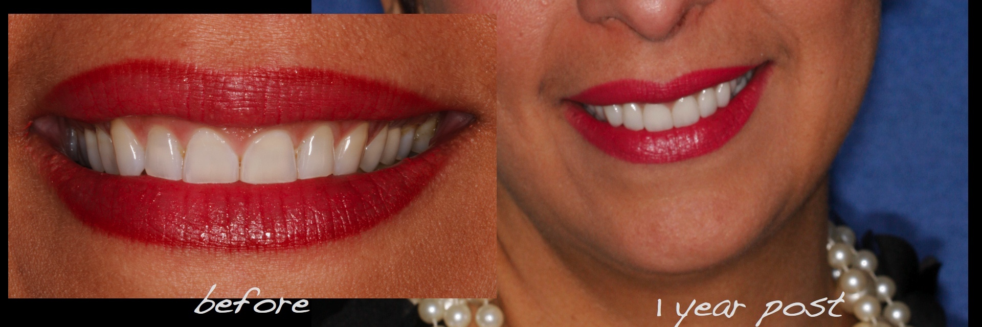 Full Mouth Dental Implants Reconstruction Conservative