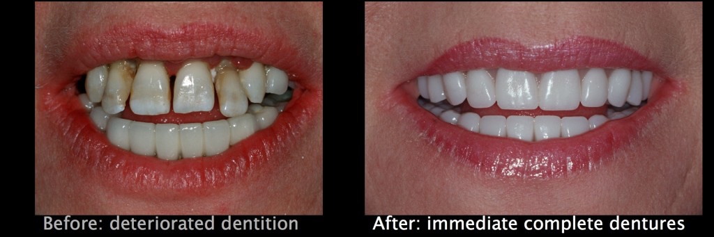 Immediate Complete Dentures Dentist Denver, Co