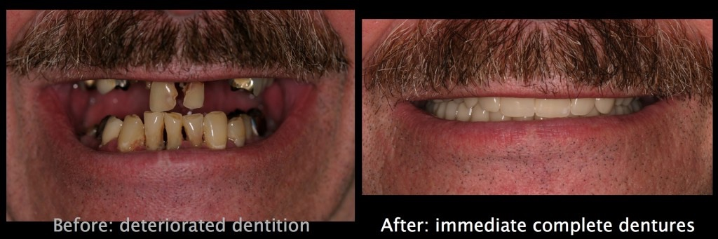 Immediate Complete Denture Website Images.003