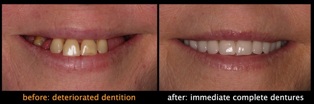 Immediate Complete Denture Website Images.004