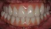 Full Fixed Dentures Denver