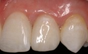 missing_incisors4