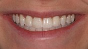missing_incisors6